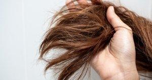 Plaukai  (nuotr. Shutterstock.com)