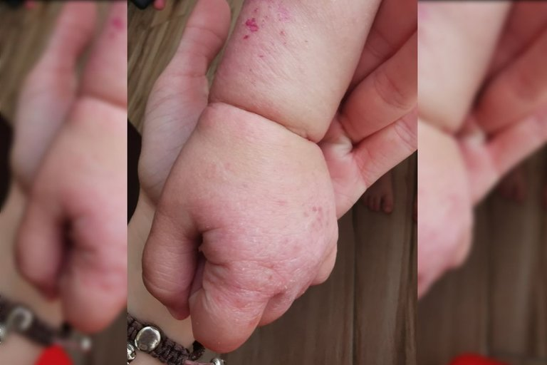 Dvimetės kūnelį nusėjo skausmingos žaizdos (nuotr. asm. archyvo)