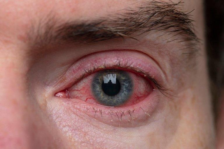 Raudonos akys  (nuotr. Shutterstock.com)