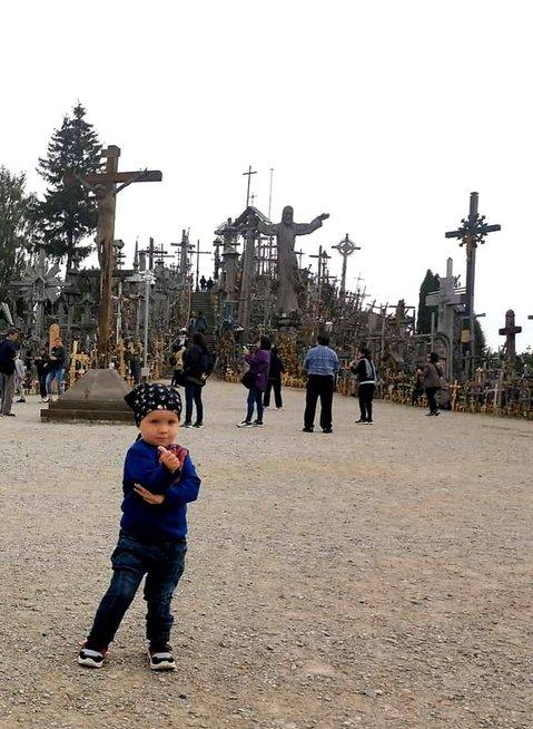 Tajuko kojos lūžis negyja jau pusmetį: šeima meldžia padėti