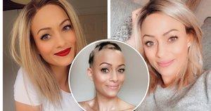 Faith O'Kelly neteko plaukų dėl klastingos ligos (nuotr. Instagram)