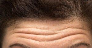 Kaktos raukšlės  (nuotr. Shutterstock.com)