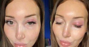 Instagramo modelis sako, kad po nepavykusios blakstienų prailginimo operacijos ji gali ir nebeatsigauti (nuotr. Instagram)