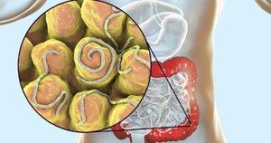 Kirmėlės organizme (nuotr. 123rf.com)