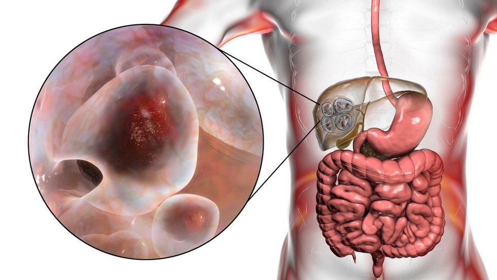 Echinokokozė