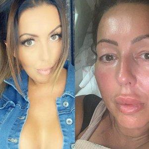 Turkijoje krūtinę pasididinti nusprendusi moteris iškentė pragarą: merdėjo ant operacinės stalo