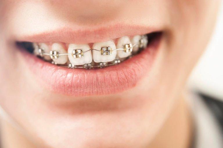Breketai (nuotr. Shutterstock.com)
