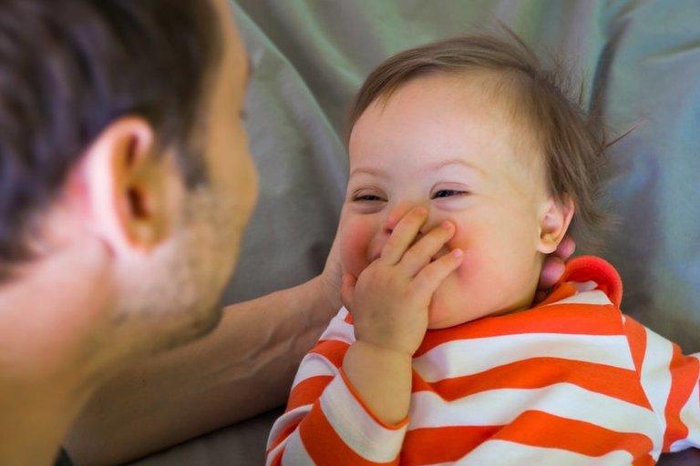 Dauno sindromas (nuotr. Shutterstock.com)