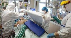 Per parą trijų Covid-19pacientų netekusi reanimatologė: šis virusas turi klastingą komplikaciją