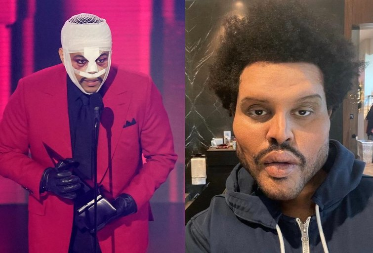 """""""The Weeknd"""" (nuotr. SCANPIX) tv3.lt fotomontažas"""