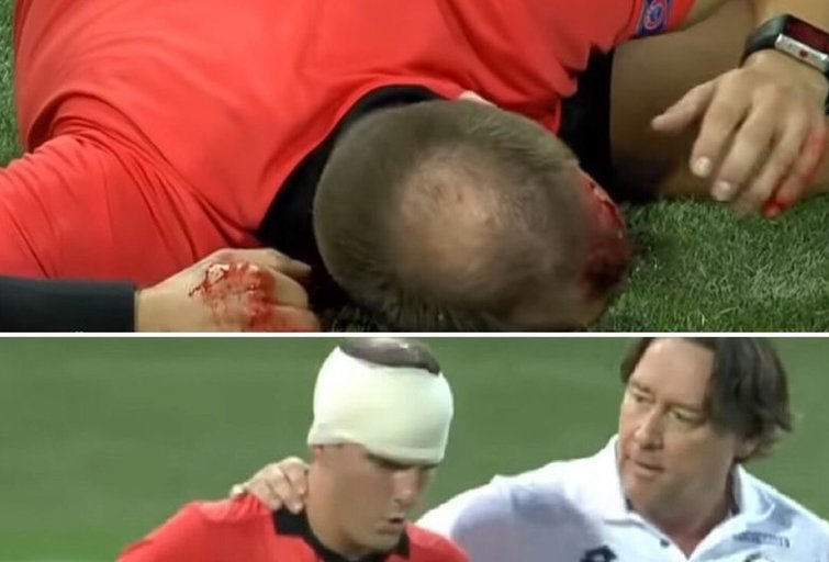 Europos lygos rungtynėse – protu nesuvokiamas kruvinas išpuolis prieš mačo teisėją (tv3.lt fotomontažas)