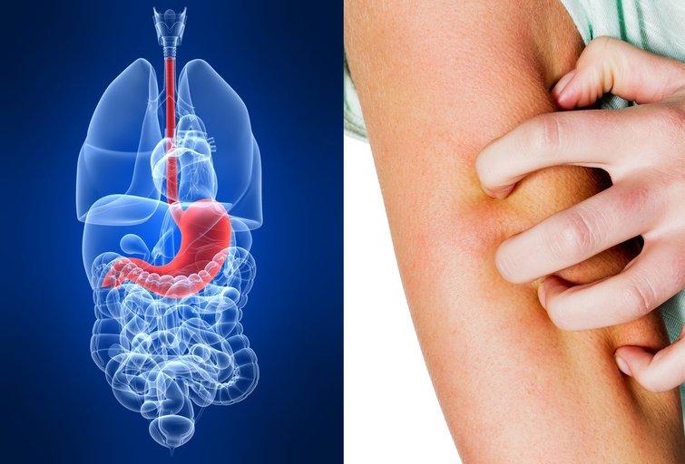 Parazitai kūne (nuotr. 123rf.com)