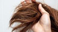 Susivėlę plaukai  (nuotr. Shutterstock.com)