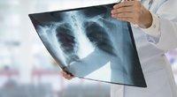Tuberkuliozė (nuotr. 123rf.com)