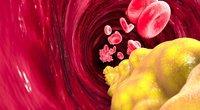 Cholesterolis (nuotr. Shutterstock.com)