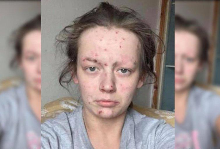 Įkvepianti moteris savo gyvenimą pakeitė iš pagrindų – priklausomybę nuo heroino ir kokaino iškeitė į kvapą gniaužiančią išvaizdą (nuotr. facebook.com)