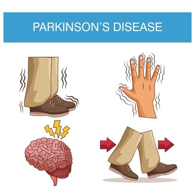 Parkinsono liga (nuotr. 123rf.com)