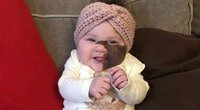 """Didžiulį apgamą ant veido turinčios mergaitės mama apie operaciją negalvoja: """"Ji tik dar gražesnė"""" (nuotr. facebook.com)"""