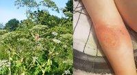 Lietuvoje augantis invazinis augalas vyro odą nudegino iki skausmų: įspėja kitus (tv3.lt fotomontažas)