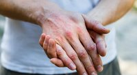 Atopinis dermatitas (nuotr. 123rf.com)
