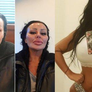 Moteris plastinėms operacijoms išleido ketvirtį milijono: parodė, kaip kūnas atrodė anksčiau
