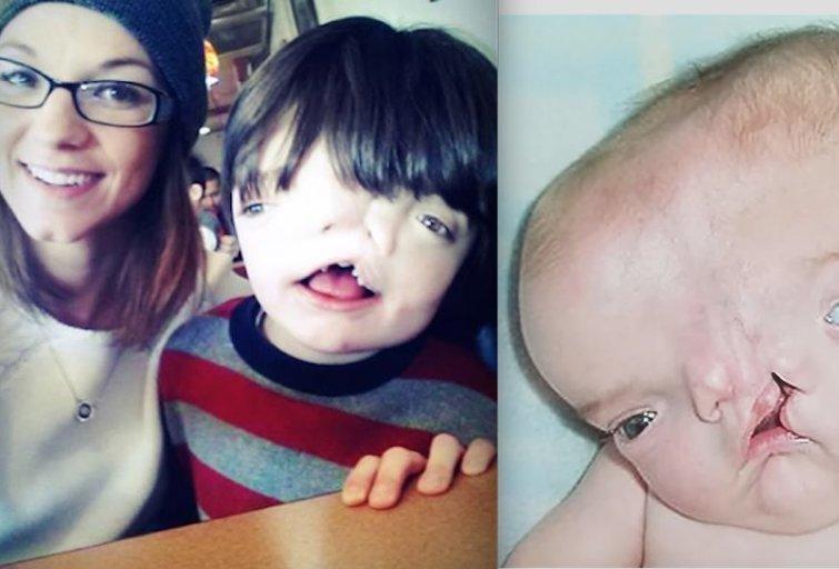 Mažasis kūdikis gimė su labai rimta veido deformacija (nuotr. YouTube)