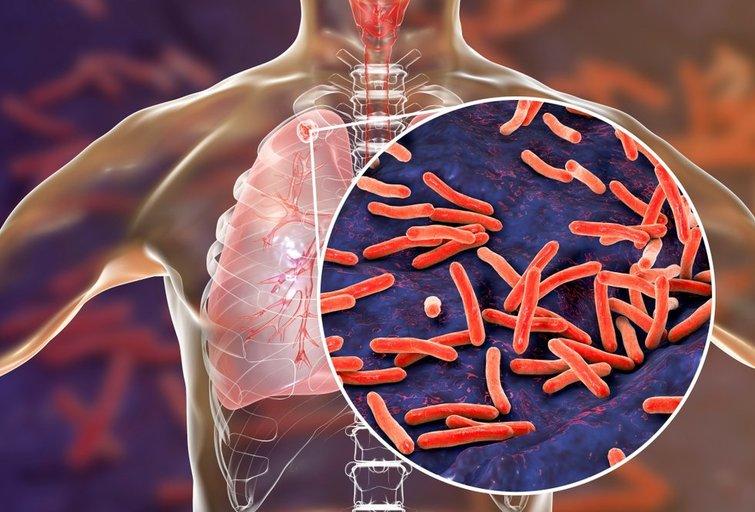 Tuberkuliozė  (nuotr. Shutterstock.com)