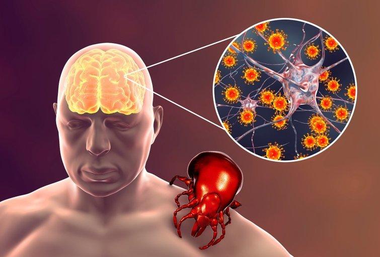 Erkinis encefalitas (nuotr. Shutterstock.com)