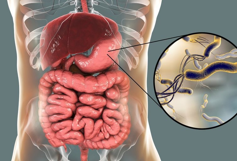 Helicobacter Pylori  (nuotr. Shutterstock.com)