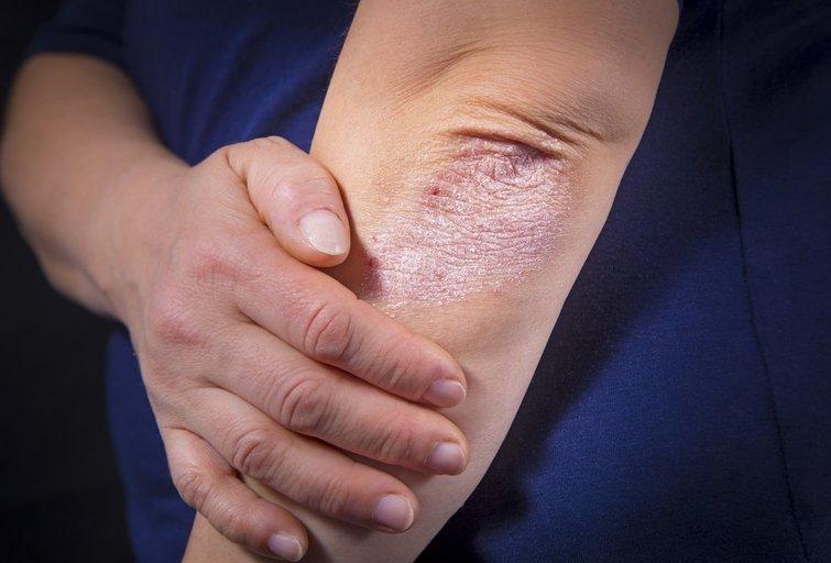 Žvynelinė (nuotr. Shutterstock.com)