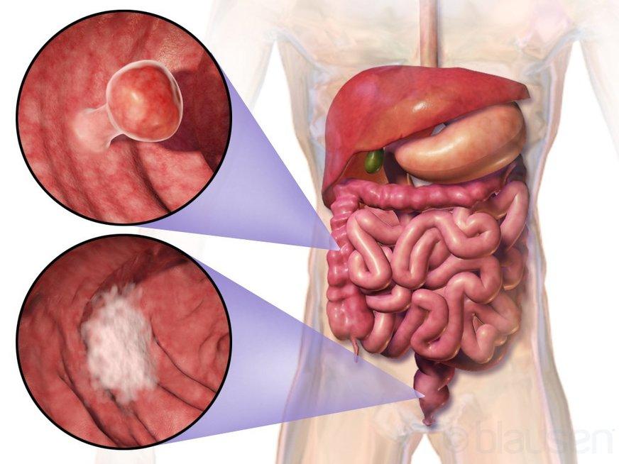 Storosios žarnos vėžys (nuotr. ©Blausen Medical Communications (CC BY 3.0) | commons.wikimedia.org)