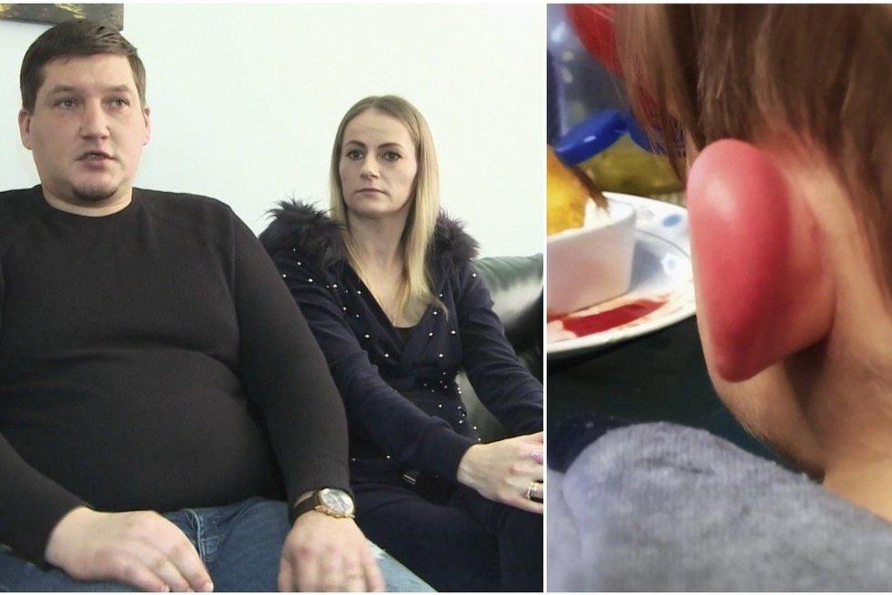 Jauną šeimą papiktino jų vaiko pasakojimas: darželis kaltės nepripažįsta