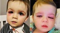 Berniuko akis ištino po to, kai į ją pateko vandens iš vonios žaislo (nuotr. Instagram)