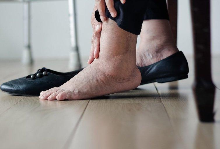 Tinstančios kojos (nuotr. Shutterstock.com)