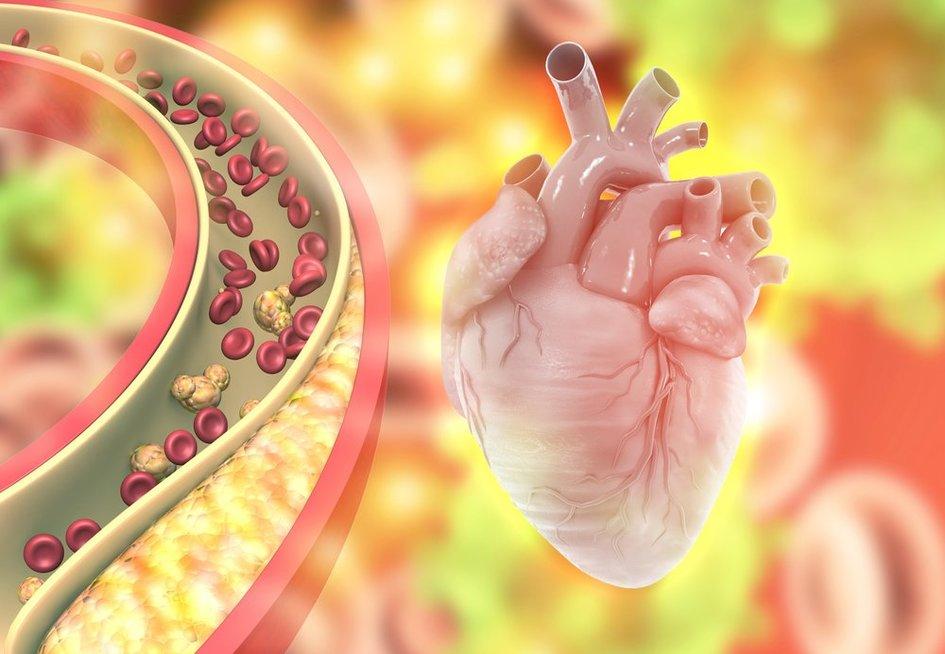 Padidėjęs cholesterolis
