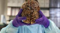 Žmogaus smegenys (nuotr. SCANPIX)