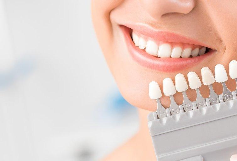 Balti dantys (nuotr. Shutterstock.com)