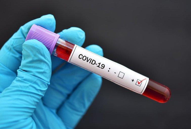 Koronavirusas (nuotr. 123rf.com)