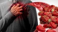 Kraujo krešuliai (nuotr. Shutterstock.com)