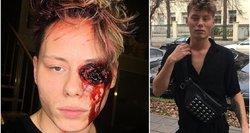 Klausos negalią turintis vizažistas atšovė jį kritikuojantiems: normalus žmogus taip nesielgtų