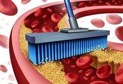Per aukštą cholesterolį gali išduoti 2 ženklai veide: pastebėkite juos laiku