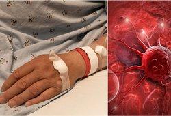 Įsidėmėkite šiuos ženklus visam laikui: išduoda agresyvų žarnyno vėžį