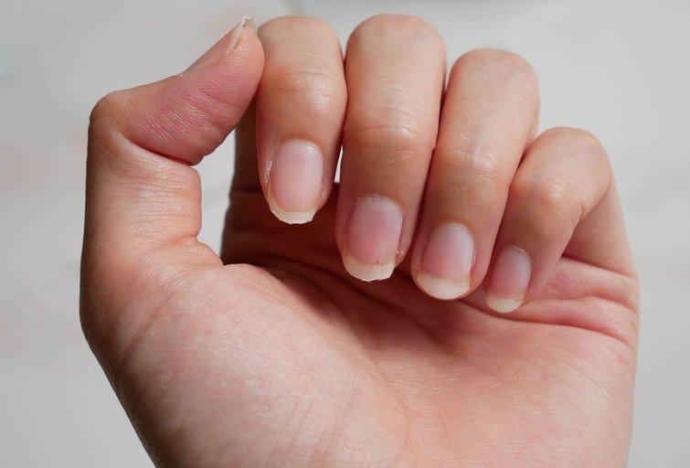 Pažeisti nagai (nuotr. Shutterstock.com)