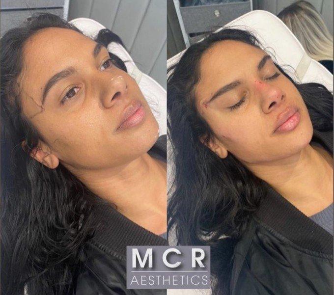 Moteris prieš procedūrą ir po jos