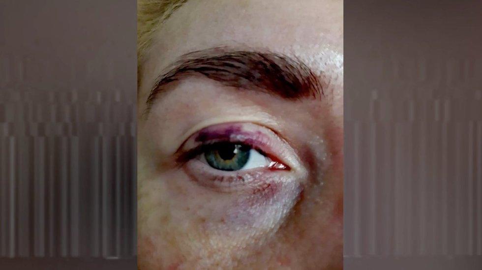 Prieš srovę. Jolanta kaltina buvusį vyrą smurtu: į akį trynė kotletą