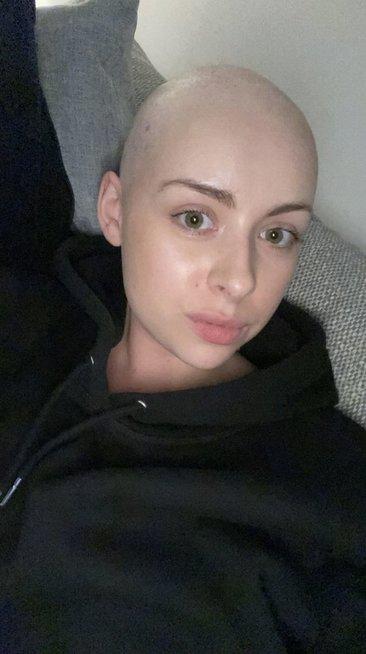 Būsimai nuotakai staiga nuslinko visi plaukai: tai ne vėžys