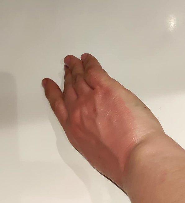Kremo sudirginta ranka