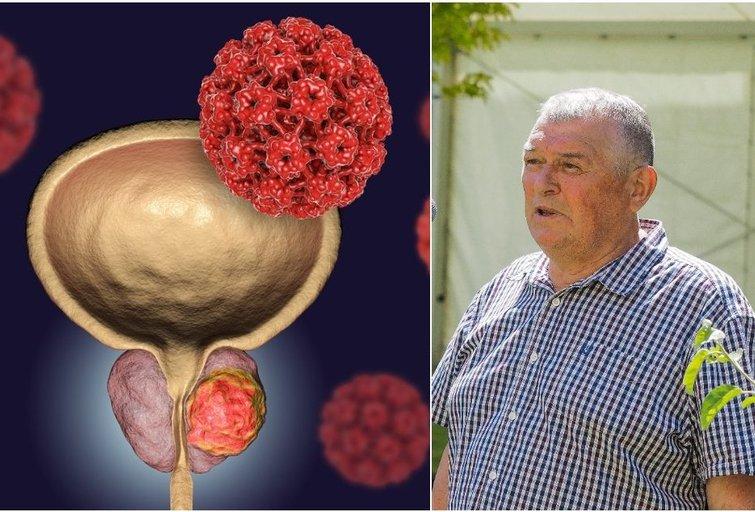 Beveik 10 metų vėžiu sergantis vyras ragina nepražiopsoti lemtingų simptomų (tv3.lt fotomontažas)