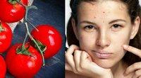 Veido spuogus išgydė pomidorais