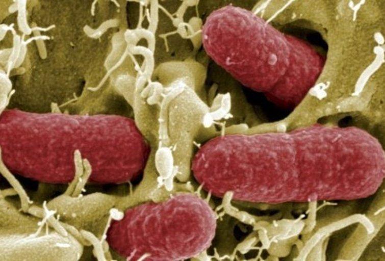 E.coli bakterijos (nuotr. SCANPIX)